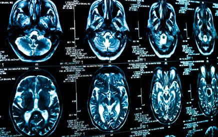 Gehirnforschung: Mehrsprachigkeit ist gesund