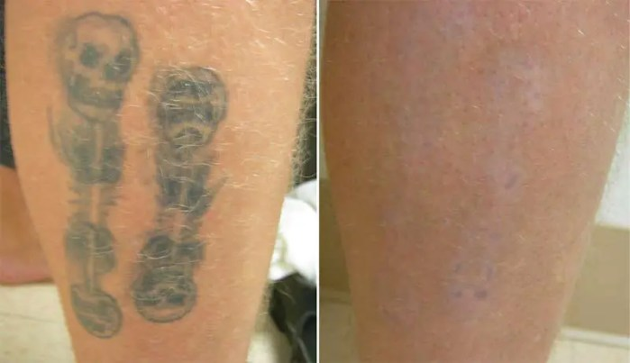 Tattoo Removal on Calf Before and After