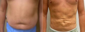 Velashape III and Liposuction Before and After