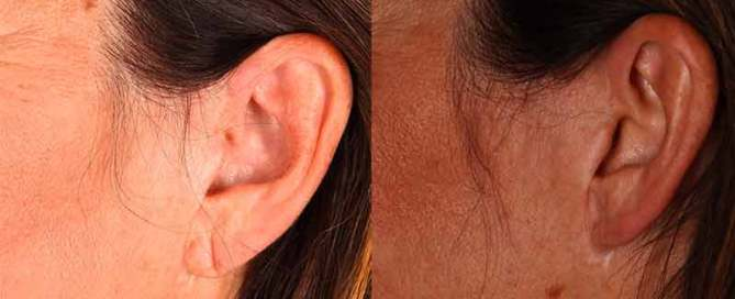 Earlobe Repair Before and After