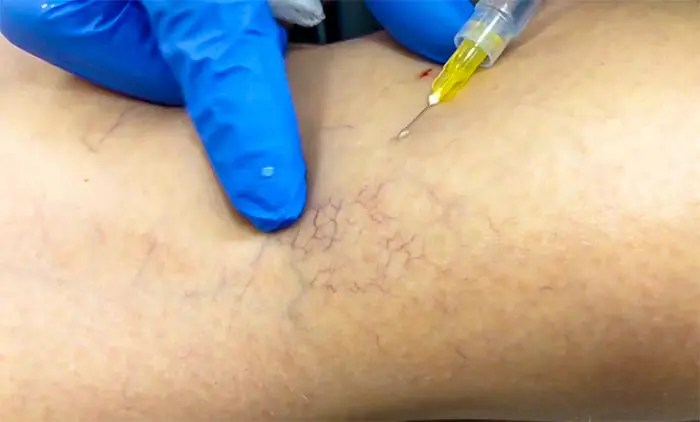 Sclerotherapy Treatment Of Spider And Vericose Veins Contour