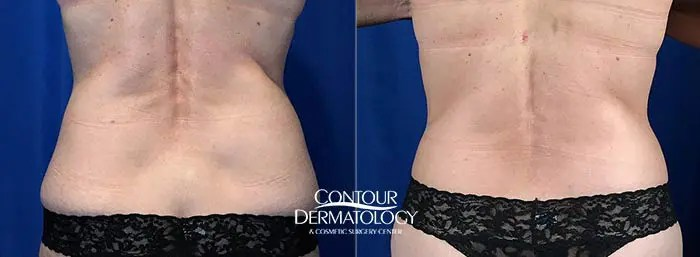CoolSculpting Before and After - Flanks