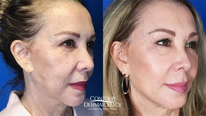 Liquid Facelift with Juvéderm Voluma