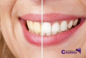 Blanquear-los-dientes-500x341