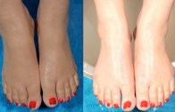 How To Make Your Feet Milky White & Beautiful Naturally At Home By Simple Beauty Secrets