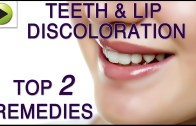 Teeth & Lip Discoloration – Natural Ayurvedic Home Remedies
