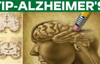 Natural Treatment For Alzheimer's – Health Tips