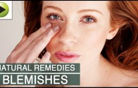 Skin Care – Clearing Skin Blemishes – Natural Ayurvedic Home Remedies