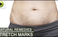 Skin Care – Stretch Marks – Natural Ayurvedic Home Remedies