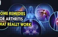 Home Remedies For Arthritis That Really Work – Health Sutra – Best Health Tips
