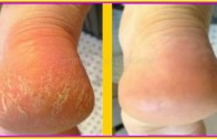 Home Remedy To Get Rid of Cracked Heels In 3 Days (Works 100%)