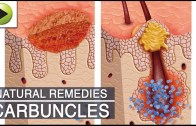 Home Remedies for Carbuncles