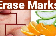 Erase Stretch Marks With In Days | Get Rid of Stretch Marks Fast