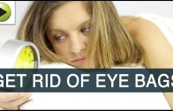 Natural Home Remedies For Eye Bags