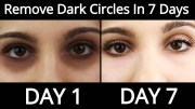 Top 5 Home Remedies To Remove Dark Circles Permanently In 7 Days – How To Remove Dark Circles