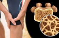 Osteoporosis Treatment &amp – Management – Get Healthy Bones