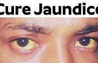 Cure Jaundice | Can Jaundice In Adults Be Cured