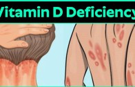 What Is Vitamin D Deficiency Disease – Common Nutrient Deficiencies