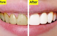 How To Whiten Your Teeth Naturally At Home – Remove Plaque &amp – Stains – Teeth Whitening At Home