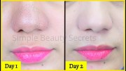 Just 1 Use &amp – Say Goodbye To Unwanted Blackheads &amp – Whiteheads Permanently, Blackheads Removal Remedy
