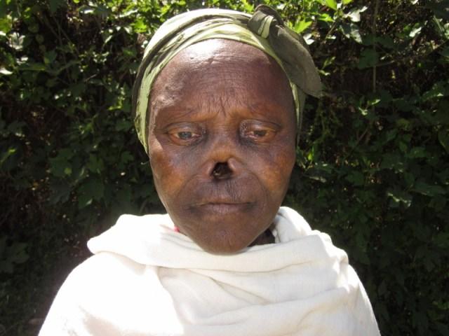 Donant la mà a la lepra / Dando la mano a la lepra africa
