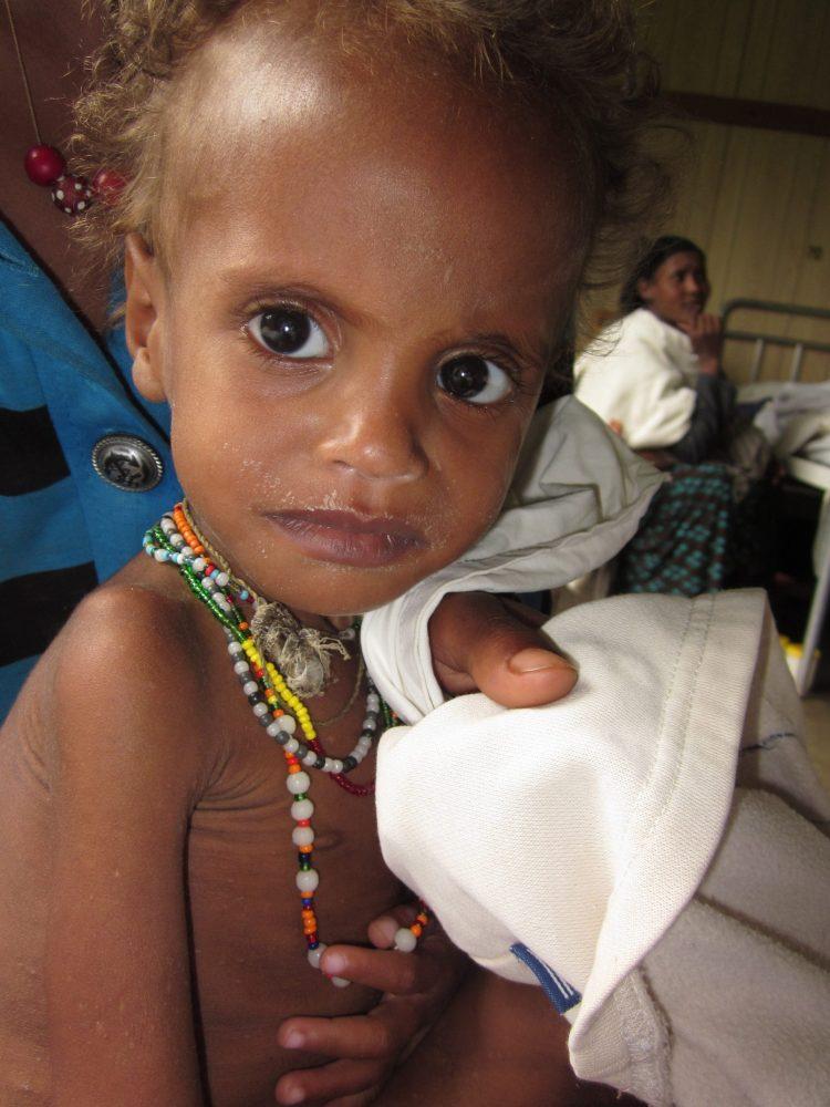 Ruziya el día del ingreso. Iñaki Alegria. Etiopía. Niños. Desnutrición. Marasmo