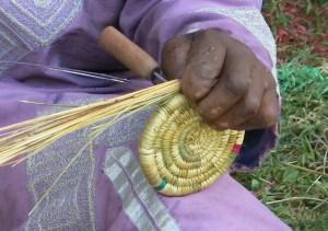 Las manos milagrosas de las personas con lepra, abrazo al corazón africa alegria gambo dr alegria etiopia