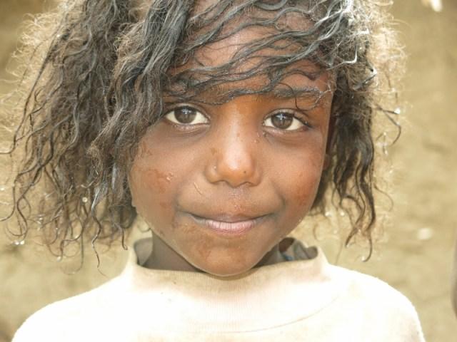 Yitchala, sí, se puede; podemos africa alegria gambo alegria sin fronteras dr alegria etiopia gambo