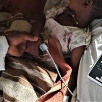 Cada vida cuenta: Luchando contra el brote de Sarampión en Gambo, Etiopía