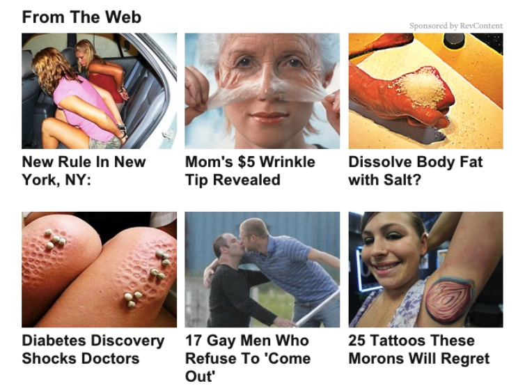 Thank you, clickbait scumbox for reinforcing my cynical view of the world. (Source: https://www.google.com/url?q=http%3A%2F%2Fwww.theawl.com%2F2015%2F06%2Fa-complete-taxonomy-of-internet-chum)