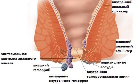 Внутренние и наружные геморроидальные узлы