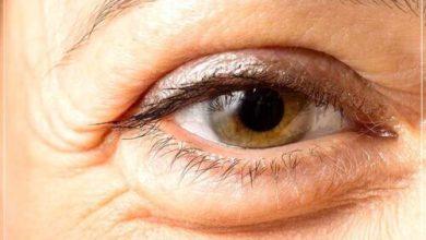 Photo of Как убрать отеки под глазами – только действенные способы