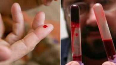 Photo of «Эти 7 продуктов разжижают густую кровь, обязательно включите их в рацион!»