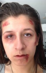 Stephanie's injuries after the attack at Coral Springs High School