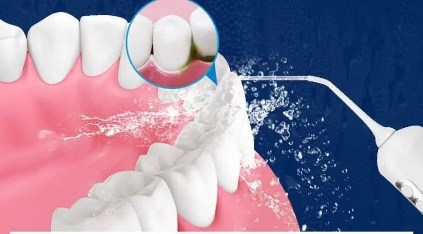 An image of the best cordless water flosser oozing water that penetrates deep between teeth to help remove tough food debris
