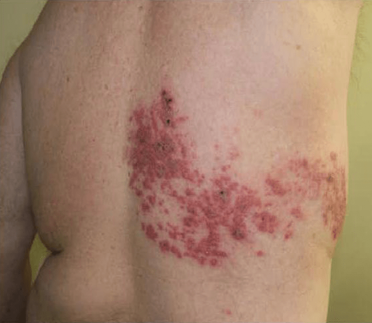 Herpes Zoster Core Em
