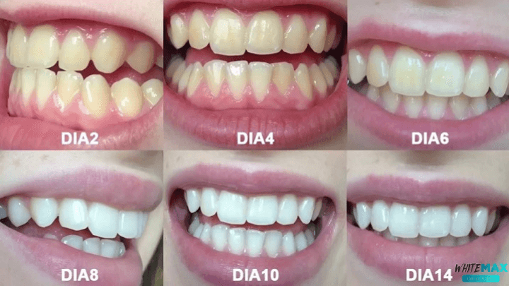 resultados do whitemax