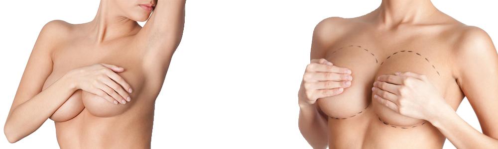 Aumento senos Corporal Core