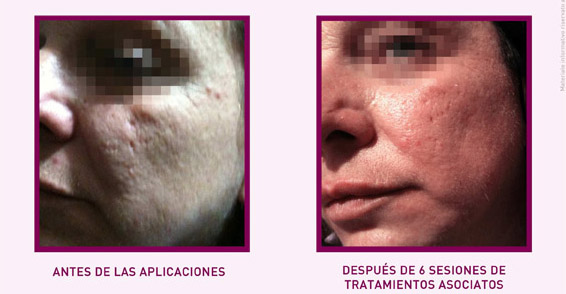 PRX-T33 - Associato a Microneedling SP