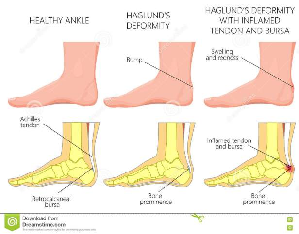haglund-s-deformity-illustration-ankle-side-view-inflamed-achilles-tendon-bursitis-used-gradient-transparency-75976118