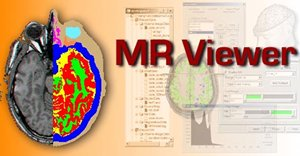 Sample MR Viewer functionality.
