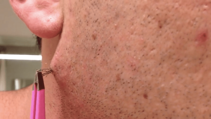 Watch This Man Pull Out The Worlds Longest Ingrown Hair