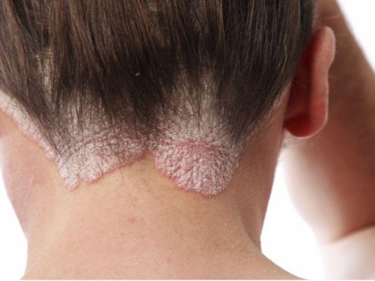Cuero cabelludo afectado por la psoriasis