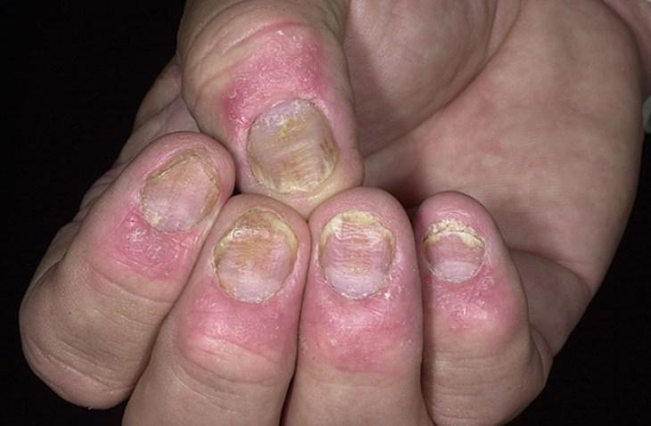 Deformación de uñas a consecuencia de la Psoriasis