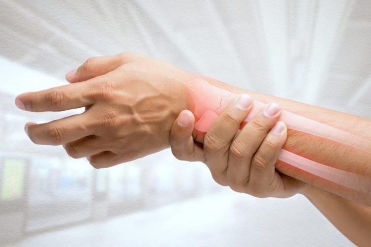 La osteoporosis puede producir fracturas tras una caida leve