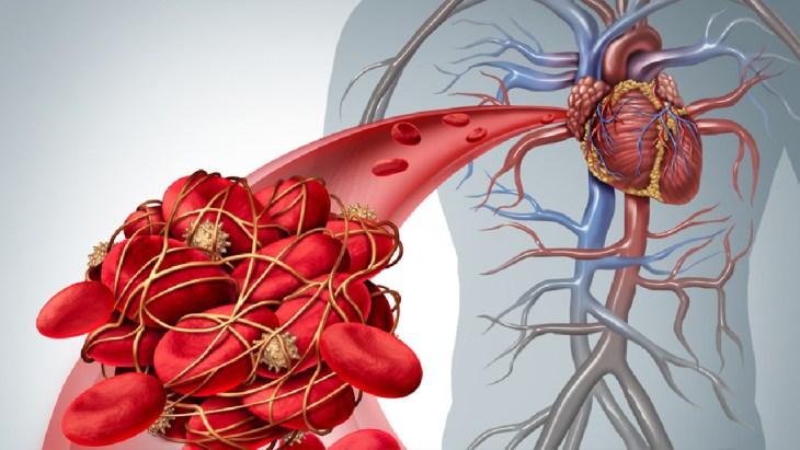 Dejar la medicación para la hipertensión puede provocar graves consecuencias.