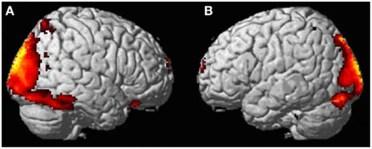 cervelloOOBE-1