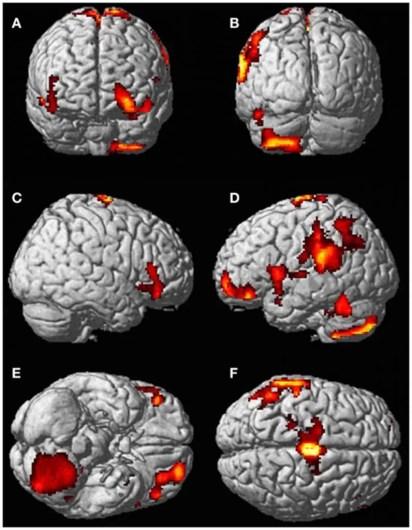cervelloOOBE-2