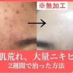 【激変】大量のニキビを2週間で直した方法。ニキビ跡に効くスキンケアや美肌のための肌荒れ改善。