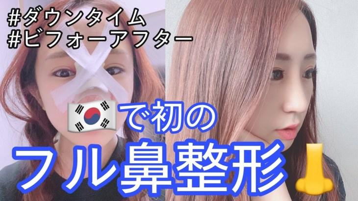 韓国でフル鼻整形👃ダウンタイム大公開❗